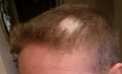 hair gash 2